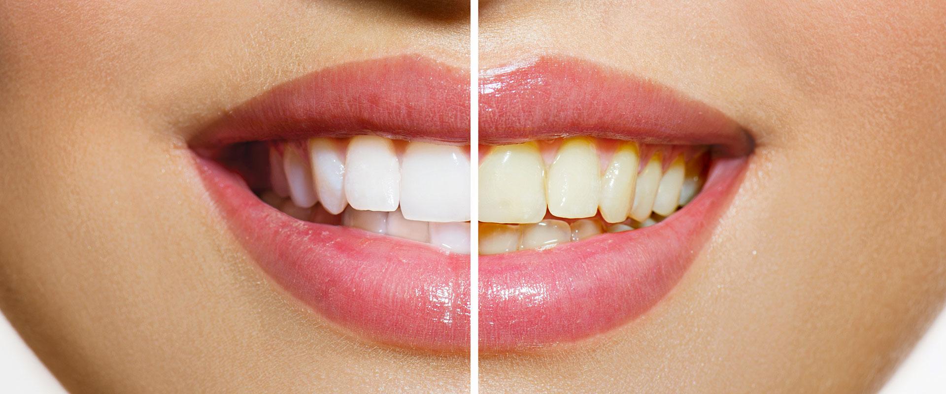 pulizia dei denti milano