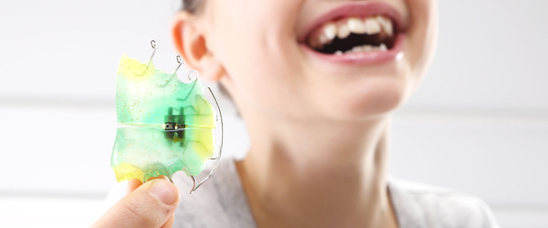 apparecchio denti milano